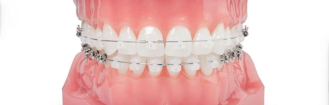 unsichtbare zahnspange stuttgart